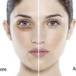 Thâm quầng mắt lâu năm phải làm sao?