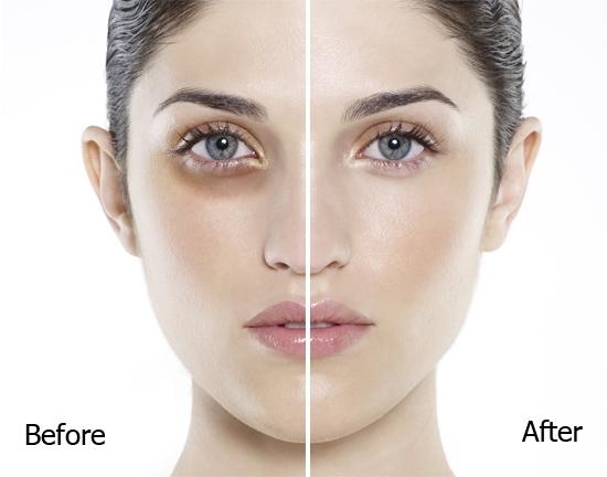 Cách chữa thâm quầng mắt lâu năm