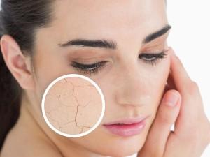 Kem dưỡng ẩm cho da khô loại nào tốt?