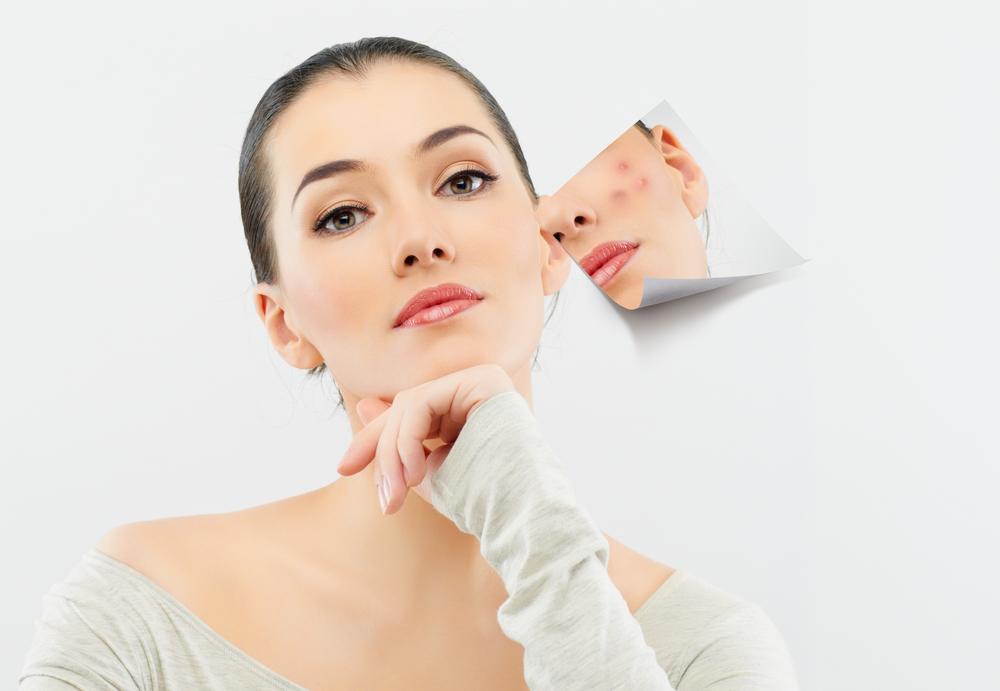 Cách trị sẹo lồi lõm bằng thiên nhiên hiệu quả tại nhà