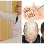 Cách làm tóc mọc nhanh và dày hơn cho con trai