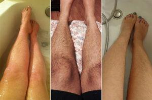 Tẩy lông chân bằng kem đánh răng tại nhà an toàn, rẻ tiền, hiệu quả